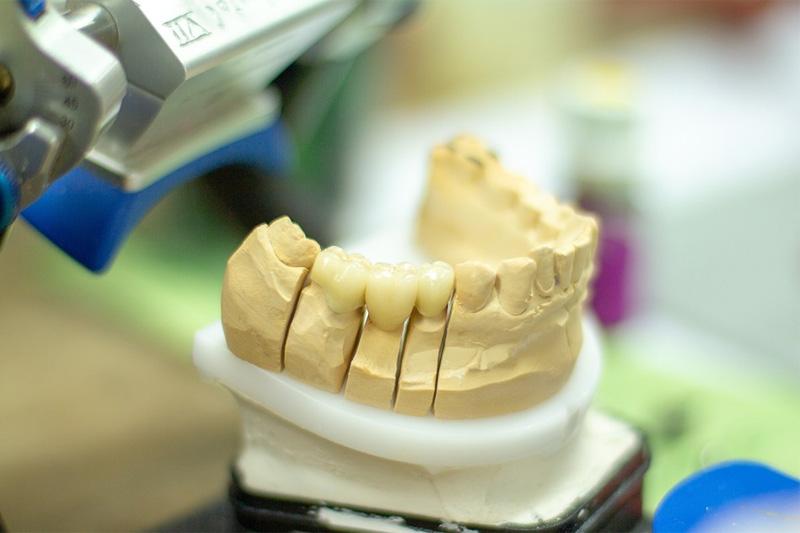 UMB - techniki dentystyczne